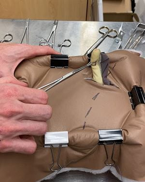 A model of an appendix being delivered through a model of an abdominal wall
