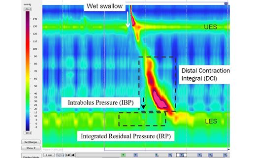 Esophageal impedance manometry