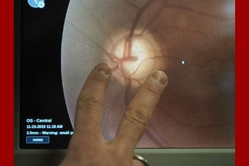 A scan of a patient's eye is displayed on a computer screen.
