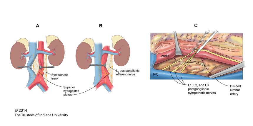Testicular Cancer Illustration